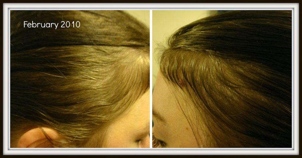 Post natal hair loss 7 months